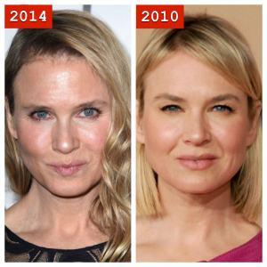 renee-zellweger-plastic-surgery-2014